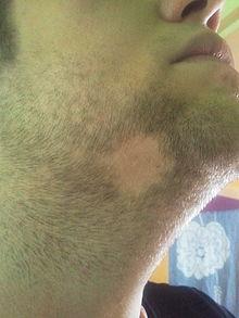 220px-Alopecia_areata_unter_dem_Kinn