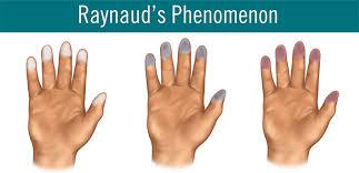 raynaud3